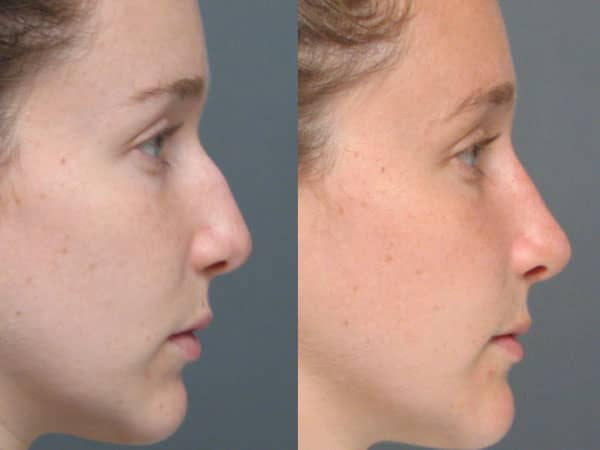 Rhinoplasty: Nose Job