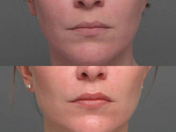 LIP ENHANCEMENT | Krupp Center | oral and maxillofacial